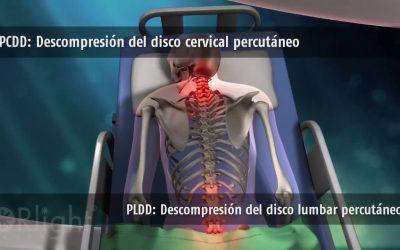 PLDD: Descomprensión del disco lumbar percutáneo
