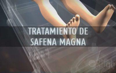 Tratamiento de Safena Magna con diodo laser 1470nm